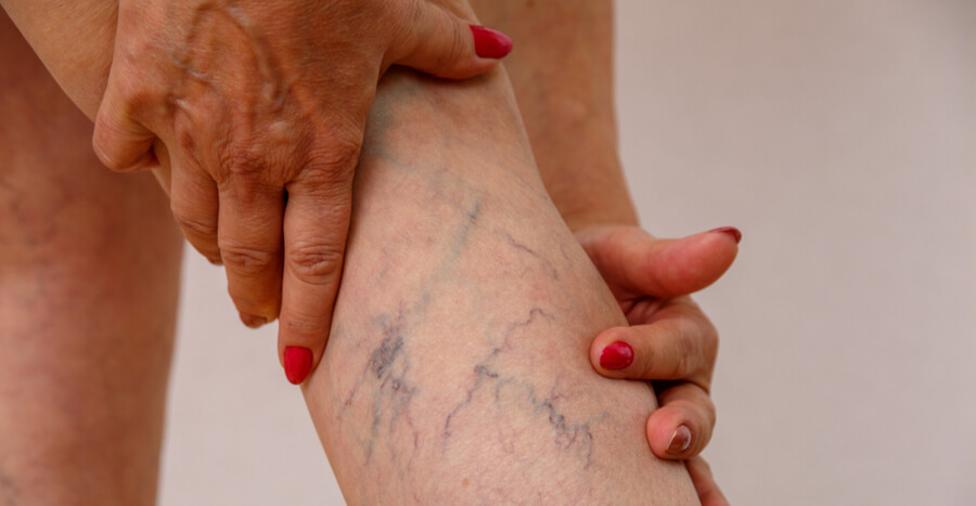 Image result for varicose veins""